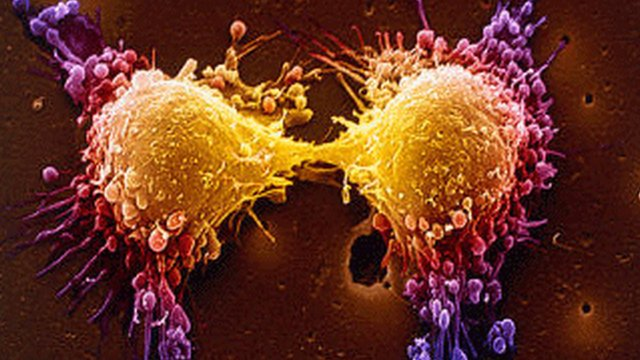 cancer_cells.jpg